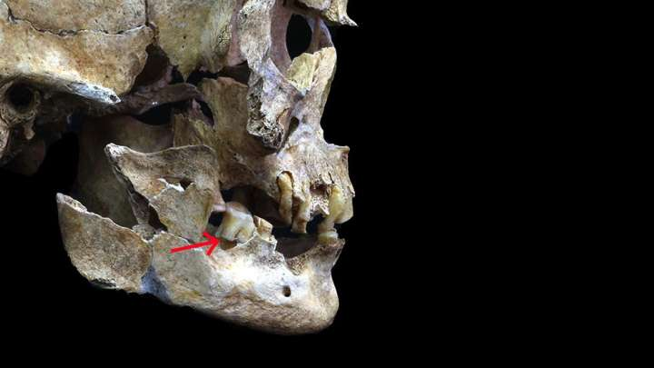 DNA Used To Reconstruct The Face Of A Woman Who Lived In Japan 3,800 Years Ago
