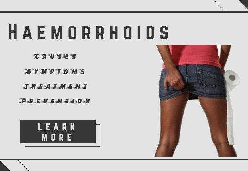 Haemorrhoids – Causes, Symptoms, Treatment And Prevention
